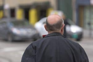 przeszczep włosów FUE